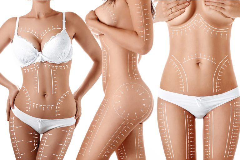 fettfjerning+hakeparti+oppstramingavhud+kroppskonturering