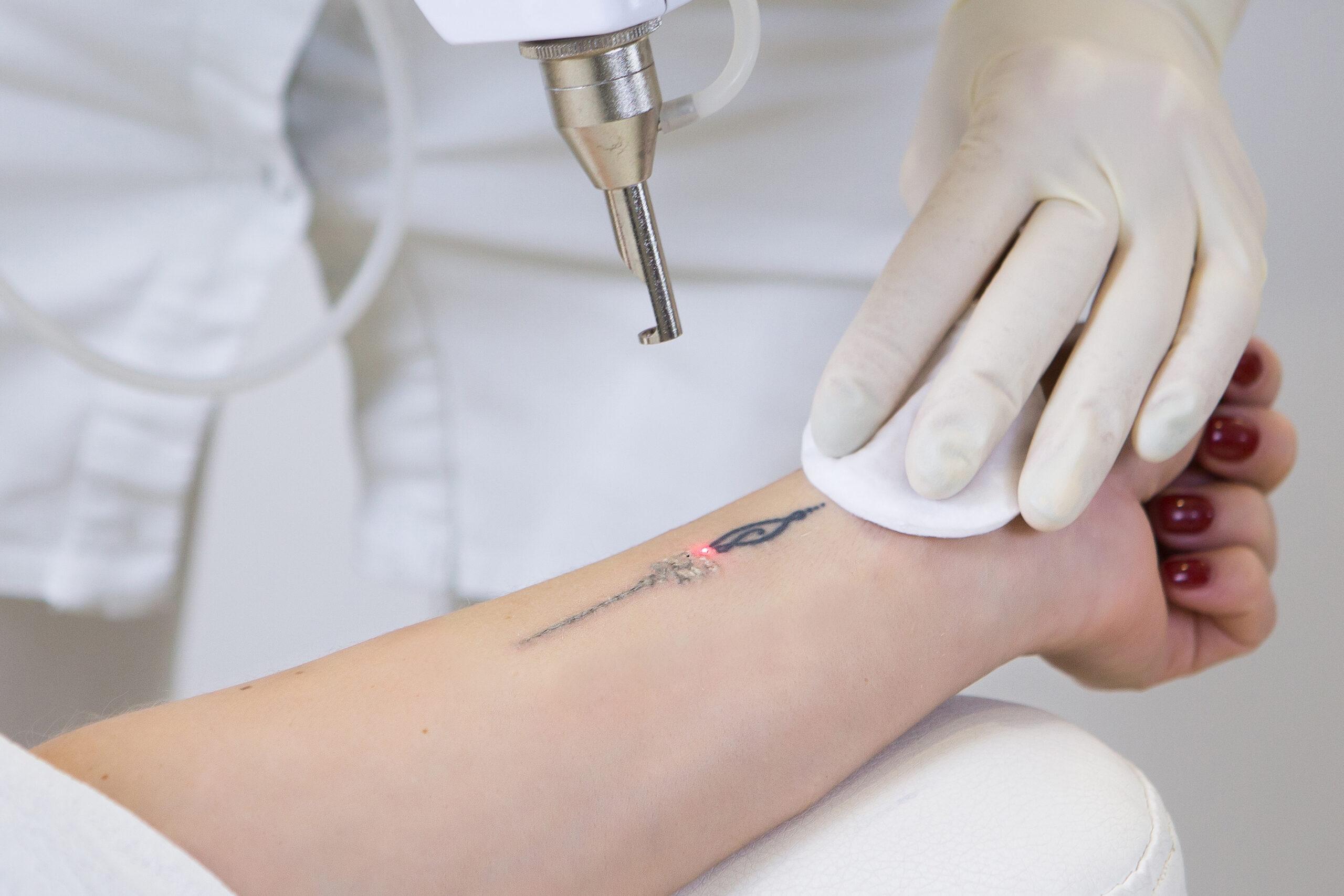 Tattoofjerning+goderesultater+laserbehandling